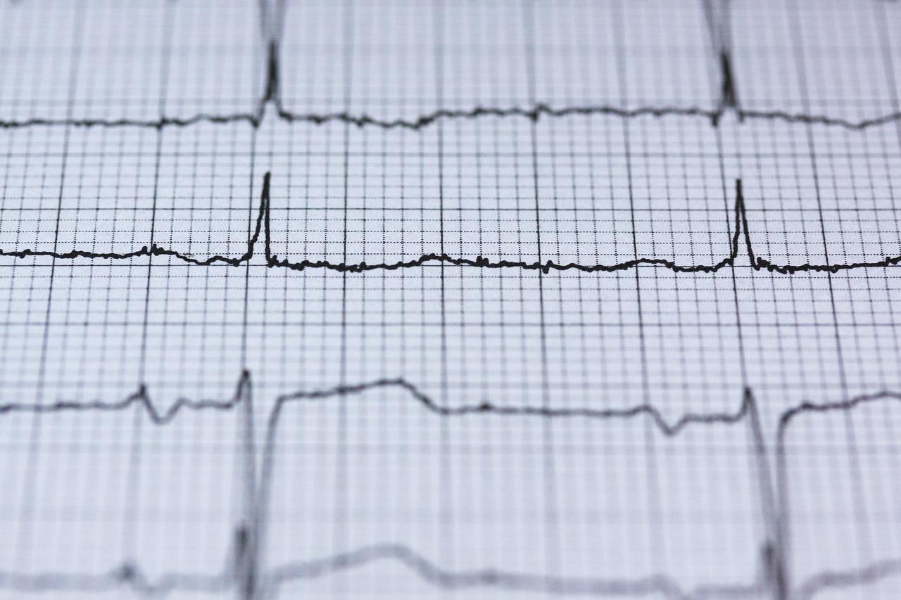 EKG wysiłkowe serca