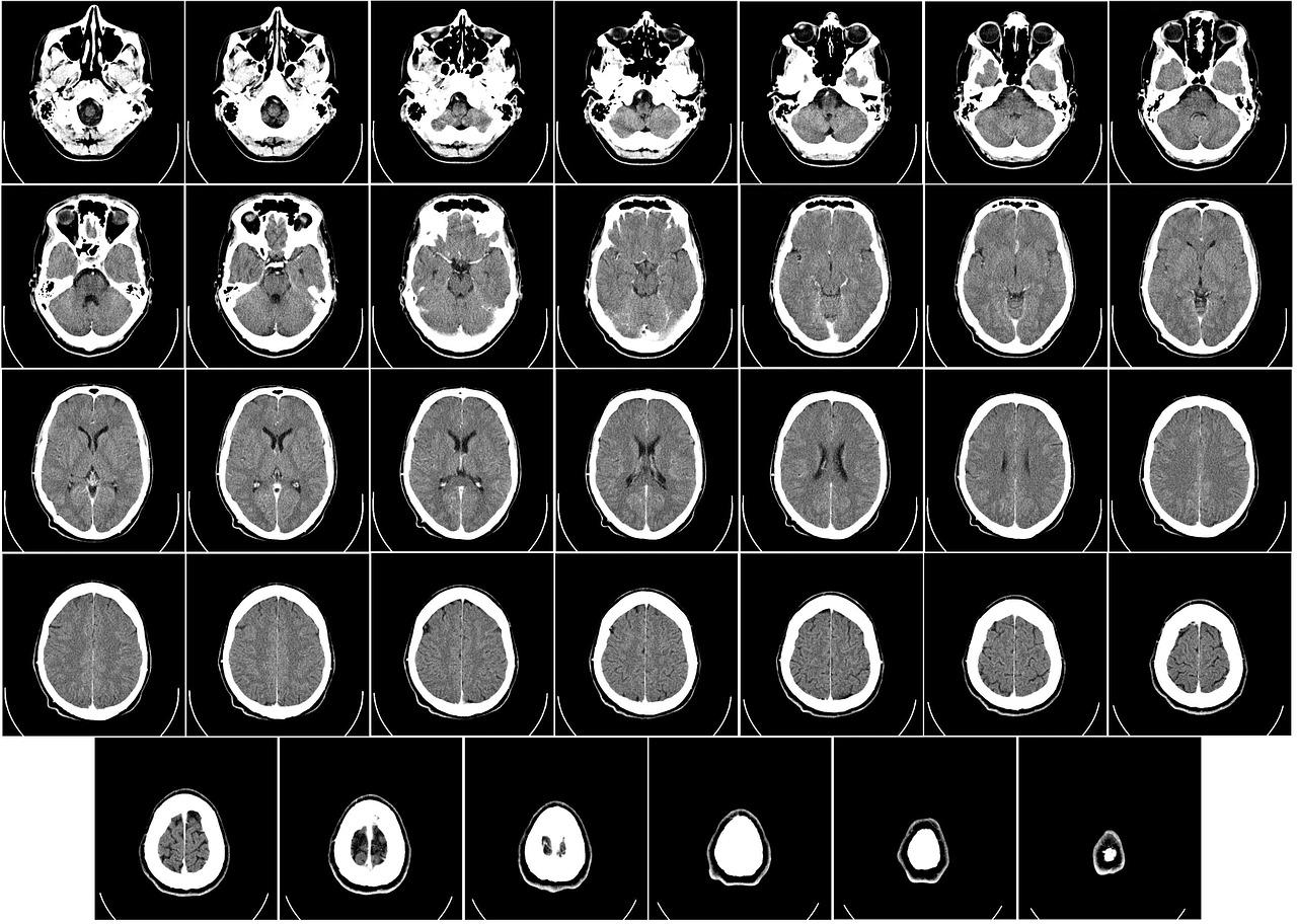 Diagnostyka obrazowa – tomografia komputerowa